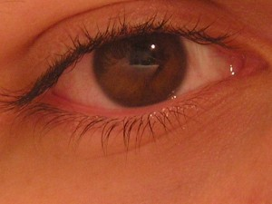 ojo-rojo-y-lloroso