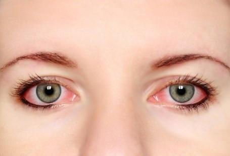 ojos-rojos-maquillaje